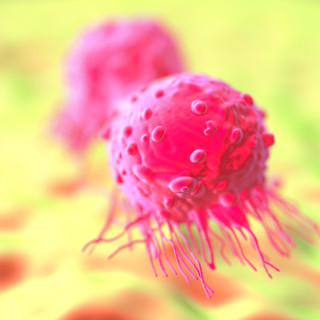 Bröstcancerceller