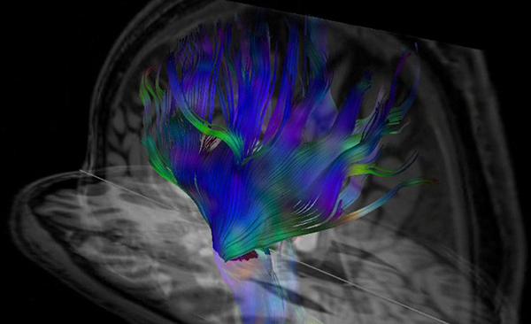 Bild: Karin Markenroth Bloch, Lund University Bioimaging Center