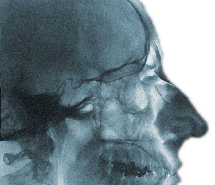 Idag kan forskare studera kroppen och dess sjukdomar ner på detaljnivå. En ny kraftfull kamera på Lunds universitets Bioimaging center kommer att vara en resurs för forskare i hela Sverige.