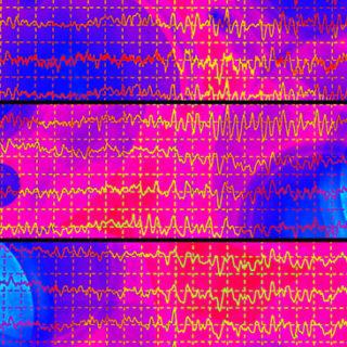 Hjärnvågor vid ett epilepsianfall i ett EEG